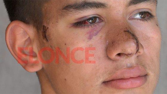 Joven brutalmente agredido en Paraná: