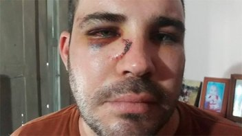 Acusan a policías de vejaciones y feroz golpiza a un joven