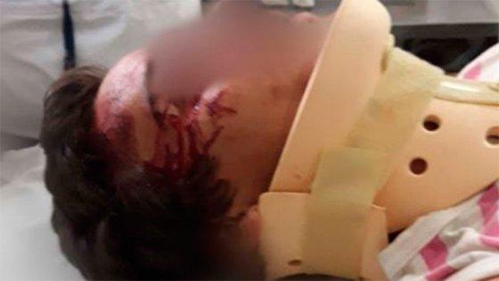 Segundo ataque de patota a joven y lo hospitalizaron: Los agresores, en libertad