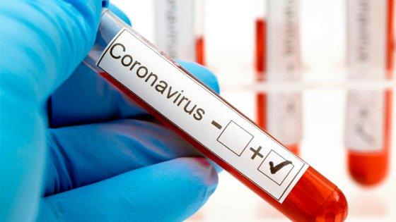 Reportaron 472 casos de coronavirus: todos los departamentos sumaron positivos