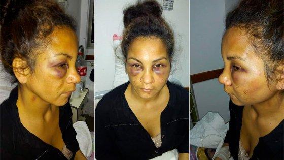 Embarazada fue salvajemente golpeada por su pareja boxeador