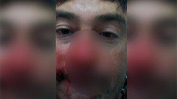 Vecino de Puerto Curtiembre denunció a autoridad comunal por agresión