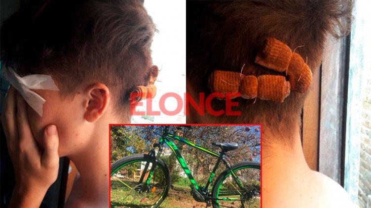 Joven gana el sustento repartiendo viandas y a piedrazos le robaron la bicicleta