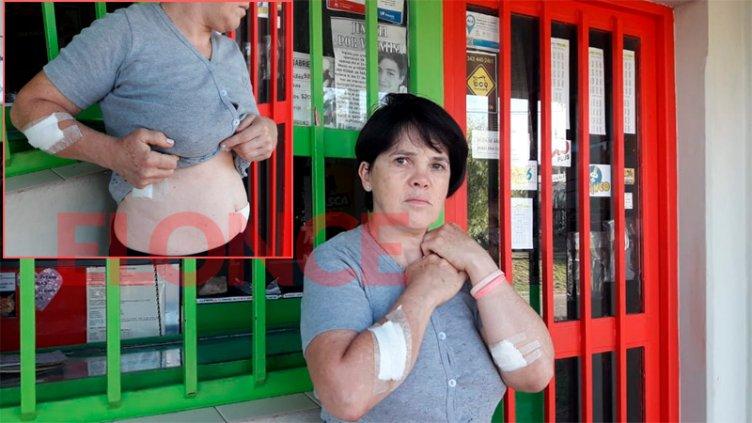 Mujer apuñalada en intento de asalto mostró sus heridas y dio detalles del hecho