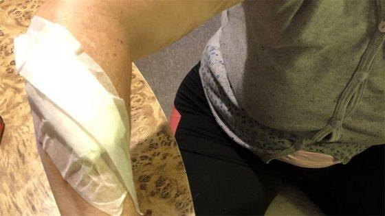 """Mujer asaltada en Paraná: """"Me pidió mi celular y, sin más palabras, me apuñaló"""""""