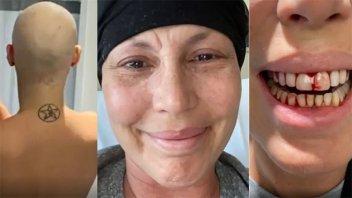 Celina Rucci reveló su lucha contra la leucemia, tras meses de quimioterapia