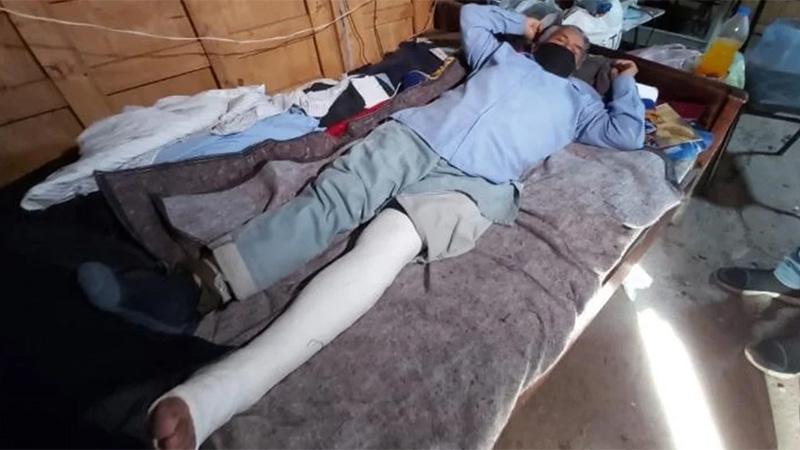 Ladrón lo asaltó y le quebró la pierna a patadas