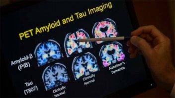 Estados Unidos aprueba una nueva terapia contra el Alzheimer