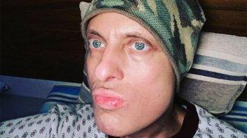 Emotiva reflexión de Lío Pecoraro en su lucha contra la leucemia