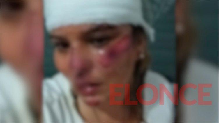 Mujer implora por datos de un automovilista que la atropelló y se dio a la fuga